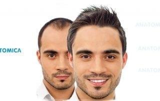 nach-der-haartransplantation