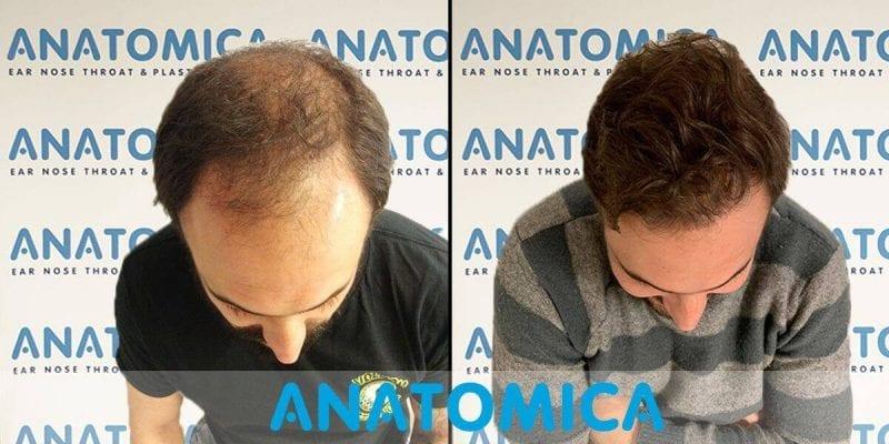 Haartransplantation-vorher-nachher-2