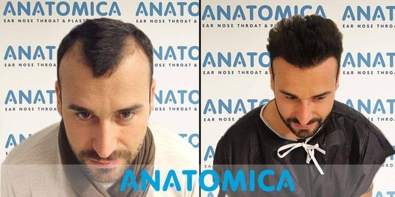 Haartransplantation-vorher-nachher-3