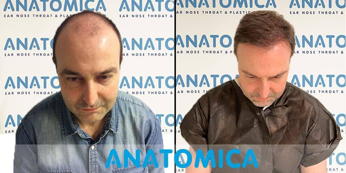 Haartransplantation-vorher-nachher-4
