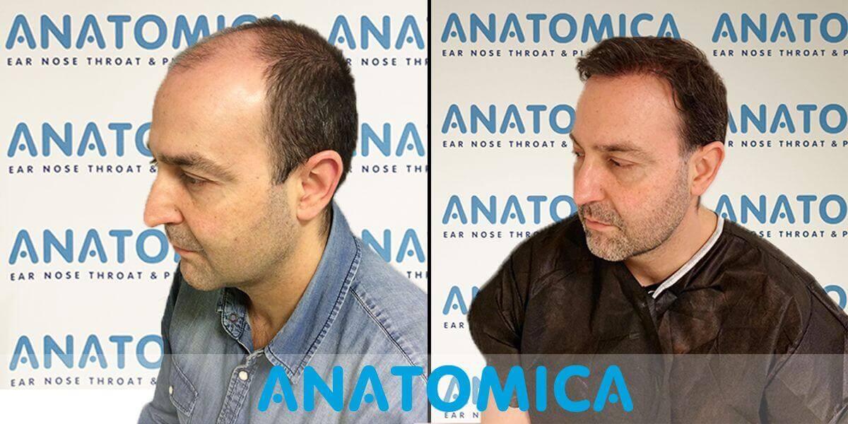 Haartransplantation-vorher-nachher-5
