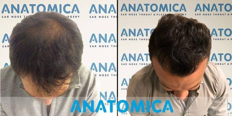 Haartransplantation-vorher-nachher-6