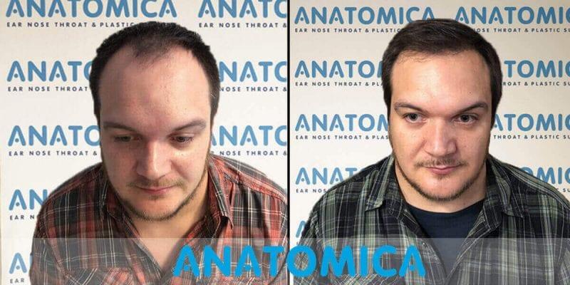 Haartransplantation-vorher-nachher-7