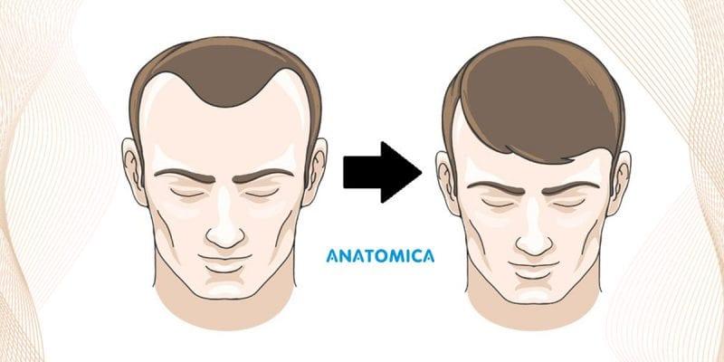 die-4-haufigsten-fragen-der-haartransplantation