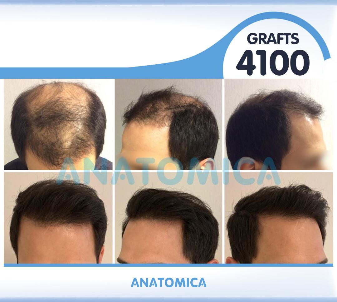 1 4100 GRAFTS 1 YILLIK SONUÇ - Haartransplantation in der Türkei