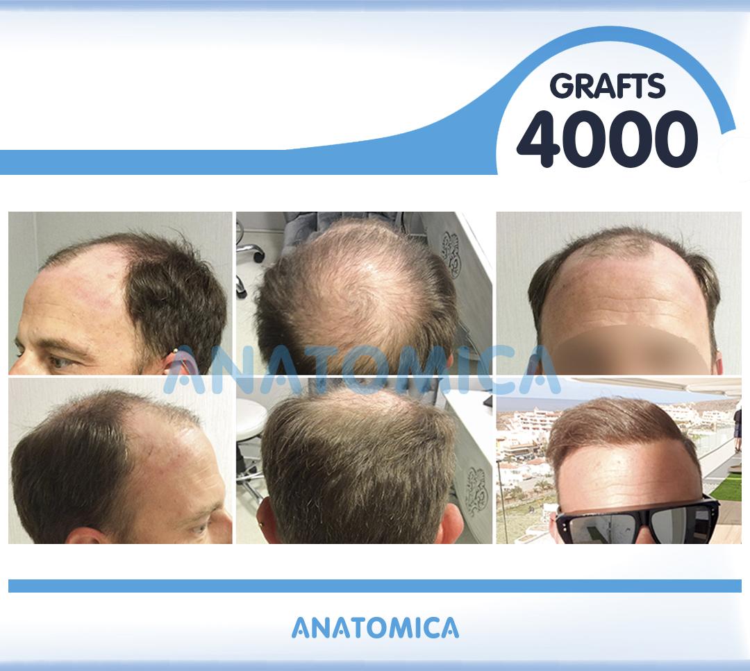 10 4000 GRAFTS 1 YILLLIK SONUÇ - Haartransplantation in der Türkei
