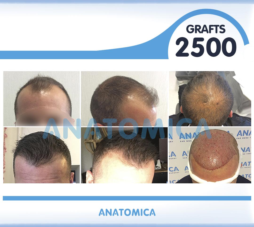 11 2500 GRAFTS 6 AYLIK SONUÇ - Haartransplantation in der Türkei