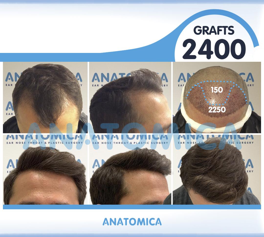 14 2400 GRAFTS 1 YILLLIK SONUÇ - Haartransplantation in der Türkei