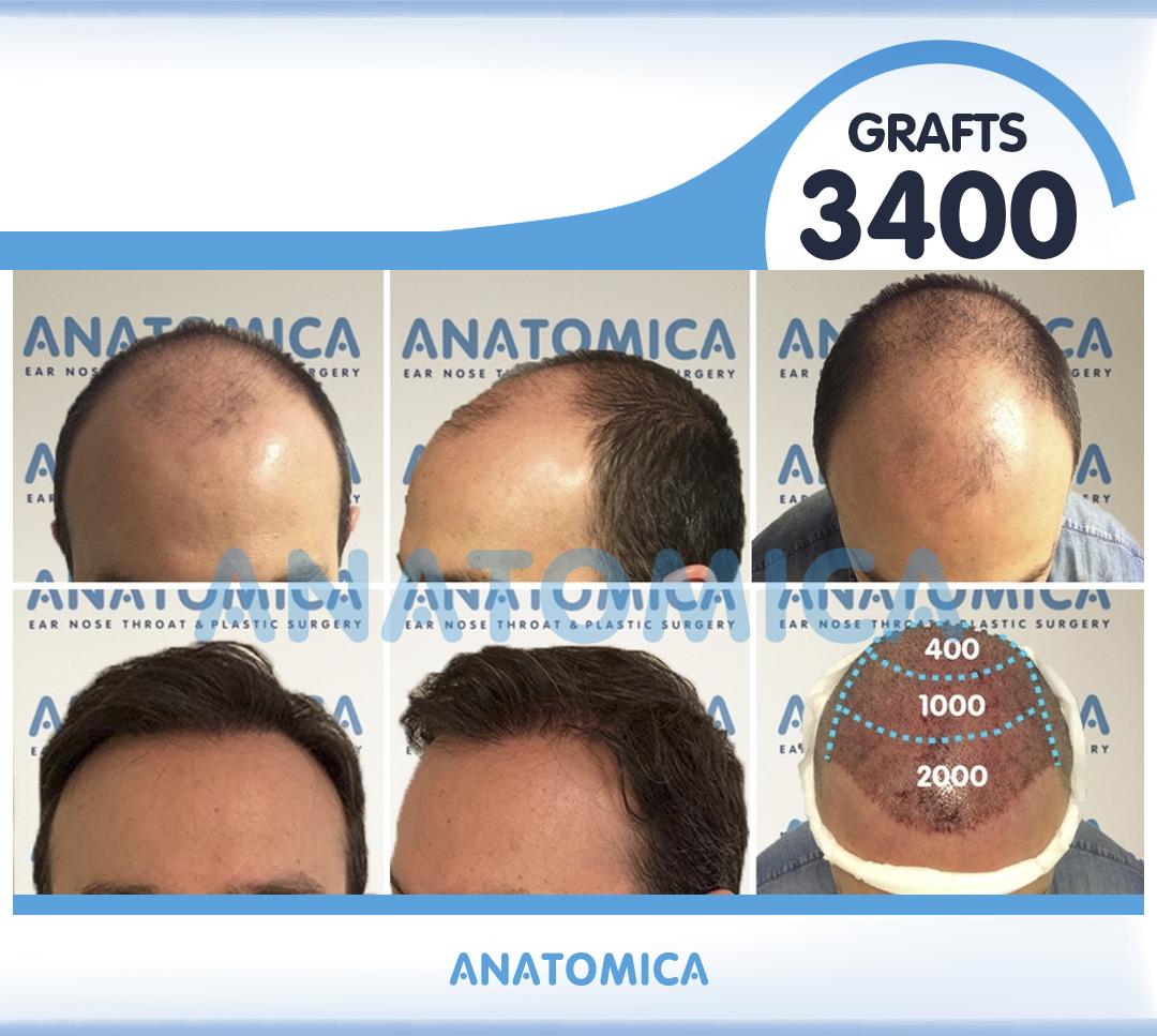 15 3400 GRAFTS 1 YILLLIK SONUÇ - Haartransplantation in der Türkei