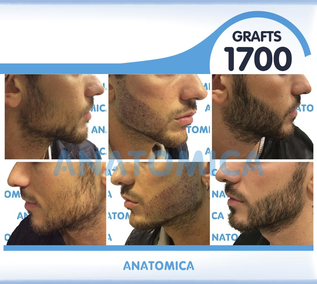 16 1700 GRAFTS 1 YILLLIK SONUÇ - Haartransplantation in der Türkei