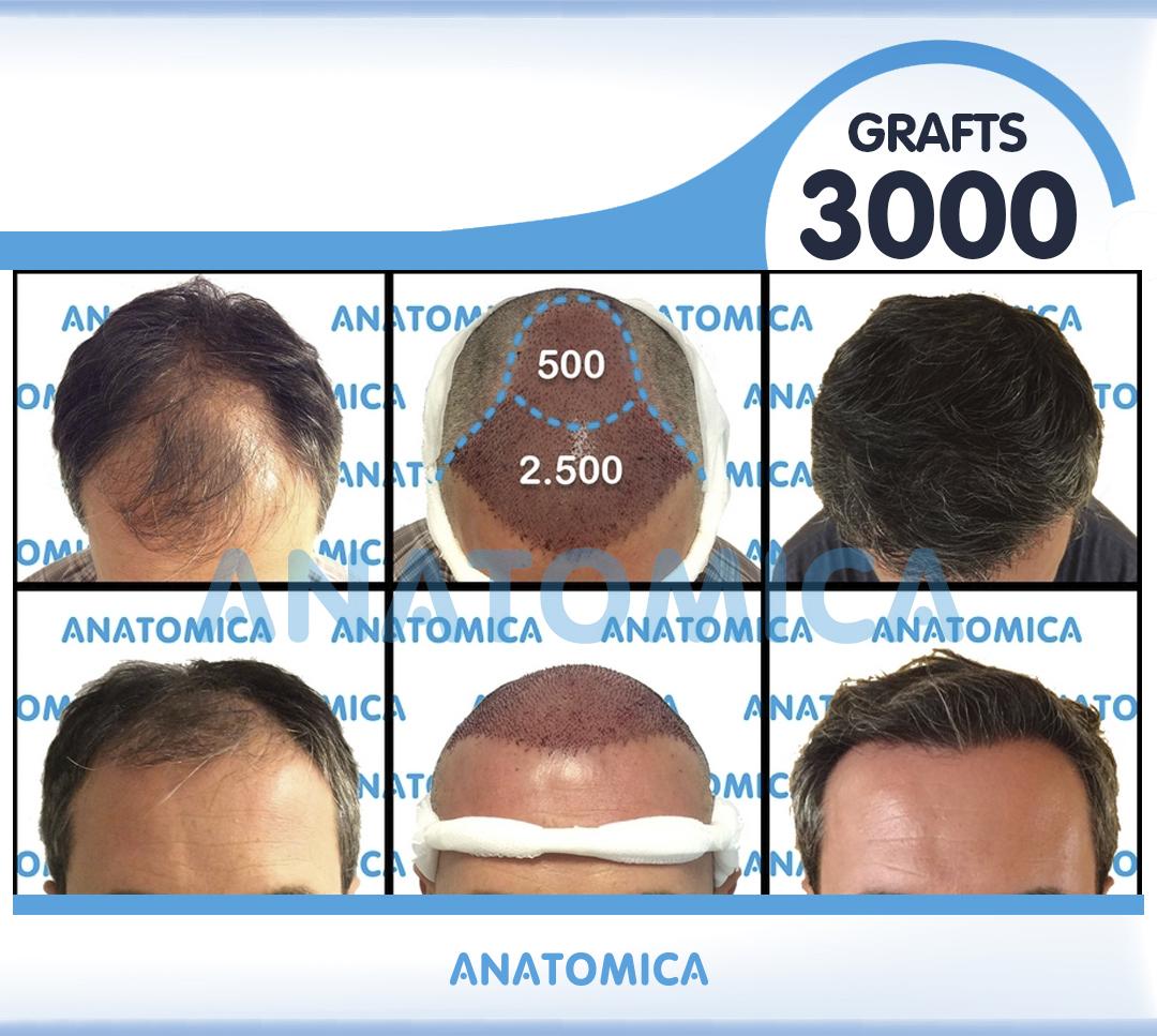 17 3000 GRAFTS 1 YILLLIK SONUÇ - Haartransplantation in der Türkei