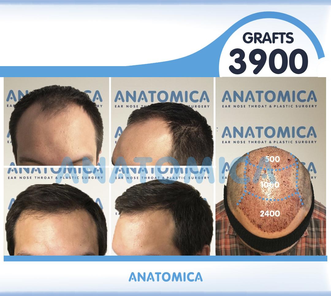 19 3900 GRAFTS 1 YILLLIK SONUÇ - Haartransplantation in der Türkei