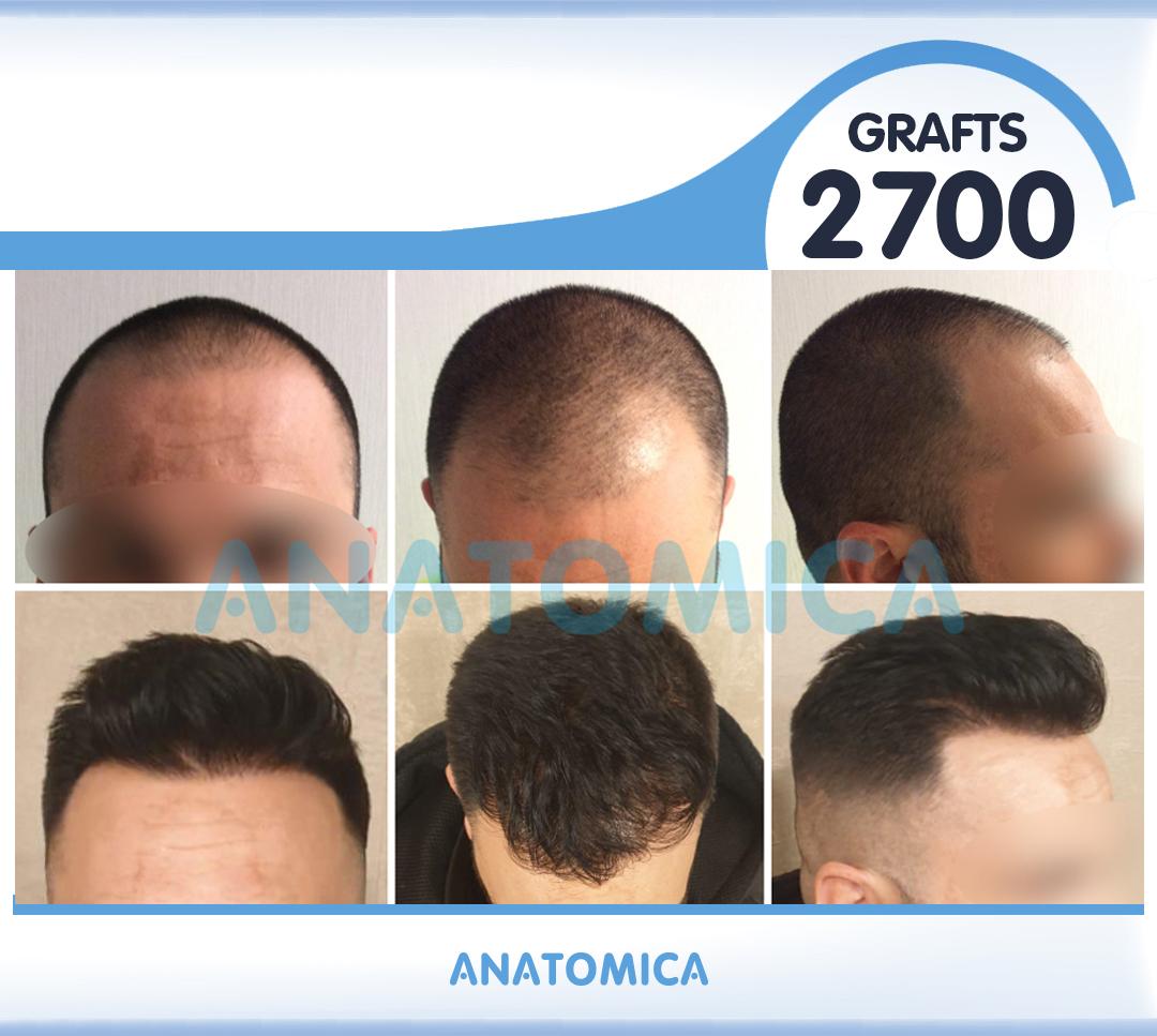 2 2700 GRAFTS 19 AYLIK SONUÇ - Haartransplantation in der Türkei