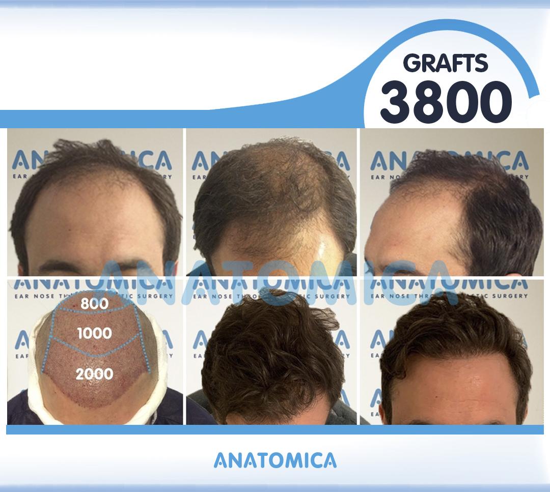 20 3800 GRAFTS 1 YILLLIK SONUÇ - Haartransplantation in der Türkei