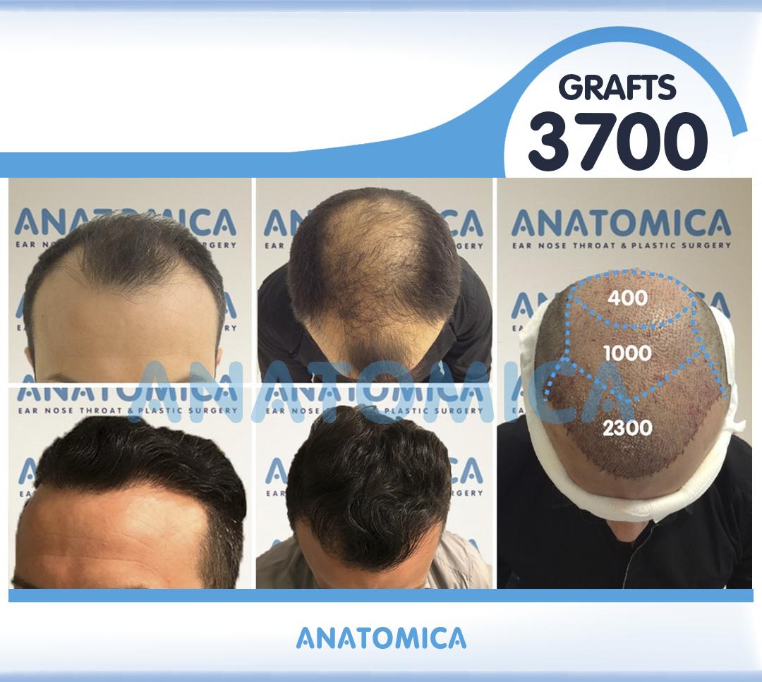 21 3700 GRAFTS FUE 1 YILLIK SONUÇ - Haartransplantation in der Türkei