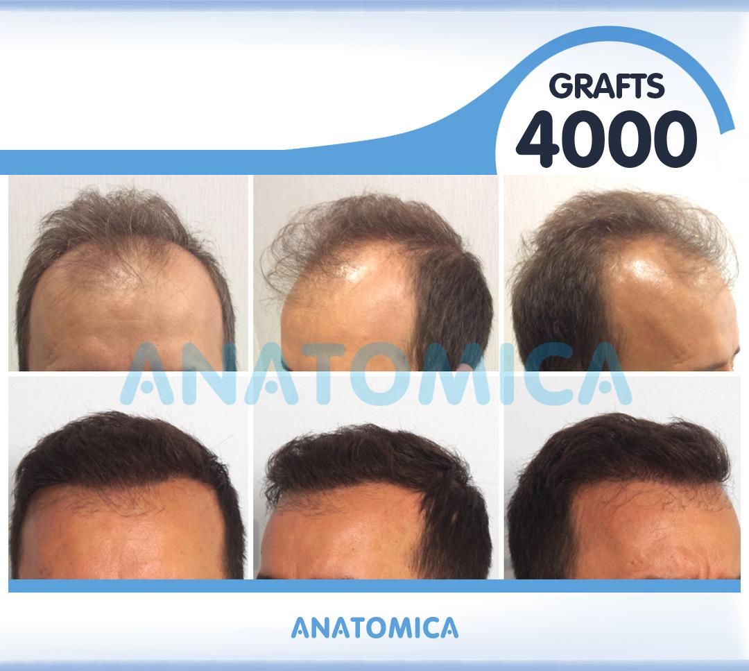 26 4000 GRAFTS 8 AYLIK SONUÇ - Haartransplantation in der Türkei