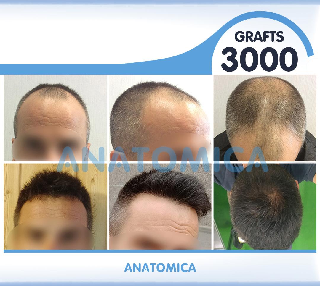 4 3000 GRAFTS 1 YILLLIK SONUÇ - Haartransplantation in der Türkei