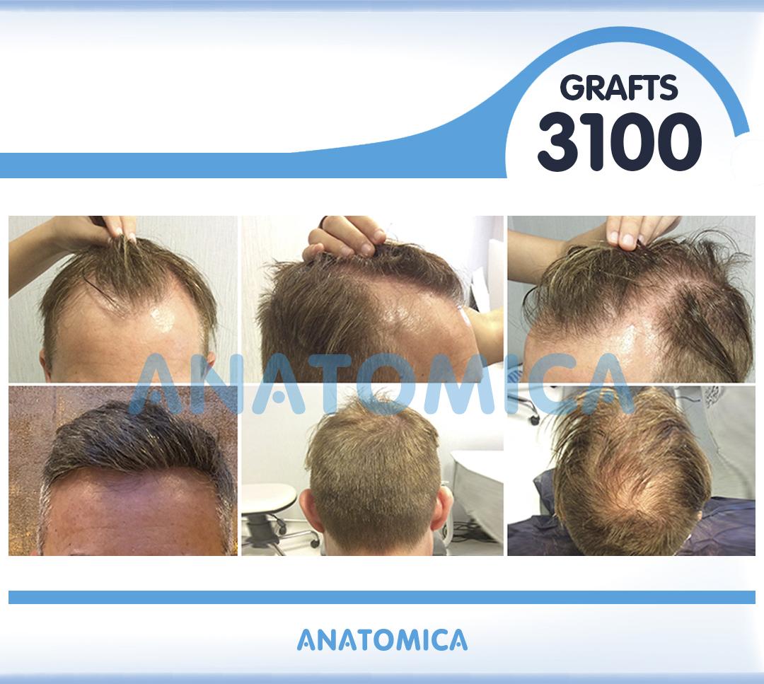 7 3100 GRAFTS 8 AYLIK SONUÇ - Haartransplantation in der Türkei